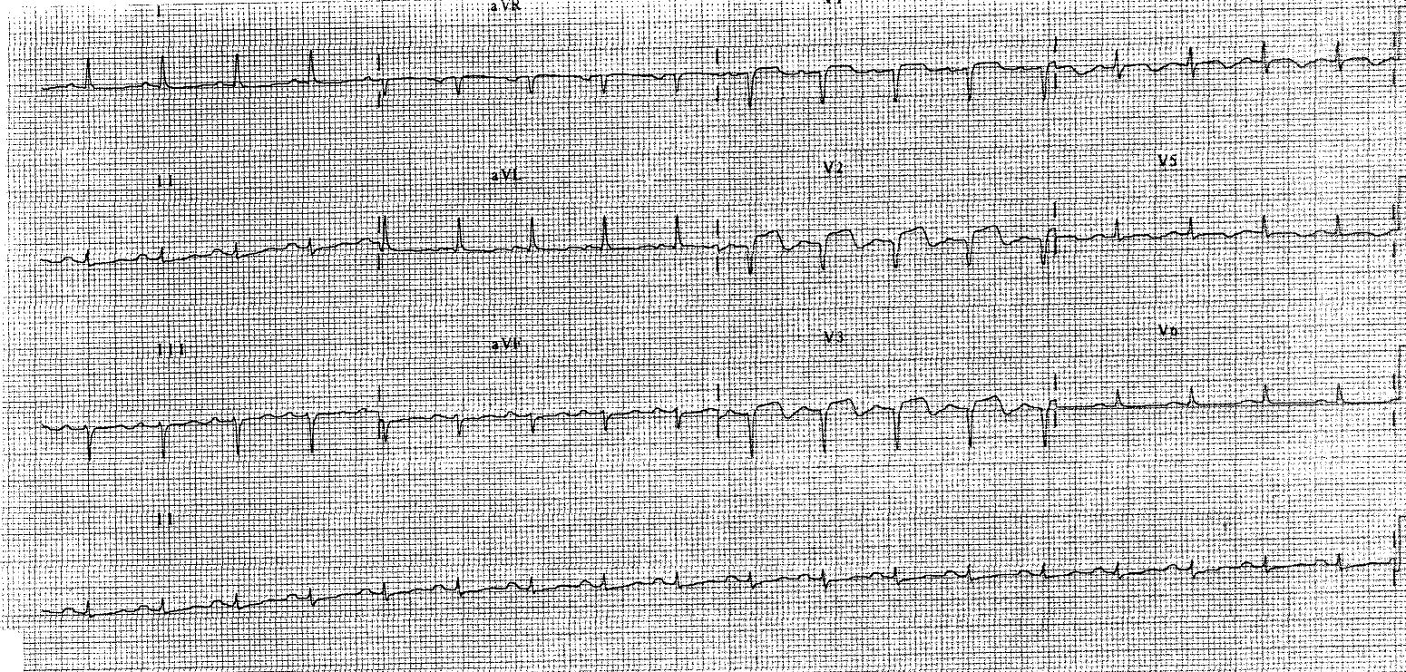 Tombstone St Elevation : Ecg case anterior stemi cardiology cases