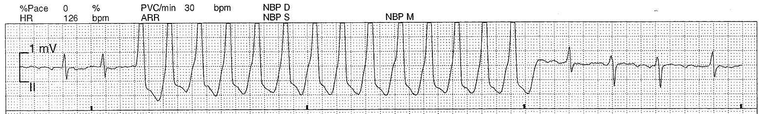 Syncope And Collapse. and pre-syncope.
